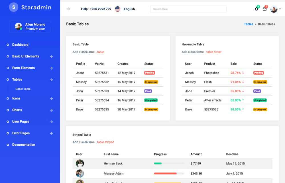 Table options available in Star admin react free admin template